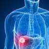 лечение опухолей за границей
