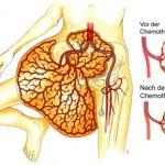 Bild 1: Darstellung des Tumors und Therapieprinzip