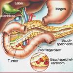 Bauchspeicheldrüsenkrebs - Pankreaskarzinom