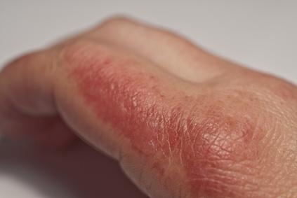 Der Dermatologen teilt der Verbrennung einen prozentualen Körperanteil zu