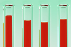 Zur Bestimmung des Ferritinspiegels, führt ihr Hämatologe eine Blutuntersuchung durch