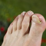 При симтомах грибка следует срочно обратиться за помощью к врачу - дерматологу