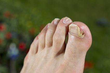 Insbesondere wenn die Nägel betroffen sind, dauert die Behandlung mehrere Wochen oder Monate