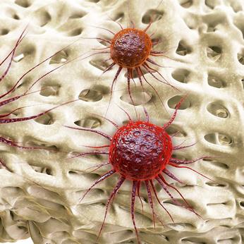 Primäre Tumore entwickeln sich aus den Knochenzellen