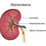 Nierensteine, Harnsteine (Nephrolithiasis)