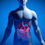 Bauchfellentzündung (Bauchhöhlenentzündung), Peritonitis