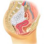 Bild 1: Querschnitt durch das weibliche Becken. Lage des Tumors vorderseitig der Wirbelsäule mit beginnender Kompression von Nerven, Dickdarm, Gebärmutter und Blase.ip