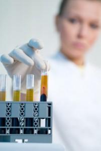 Schmerzen beim Wasserlassen - Urinanalysis - Blut im Urin