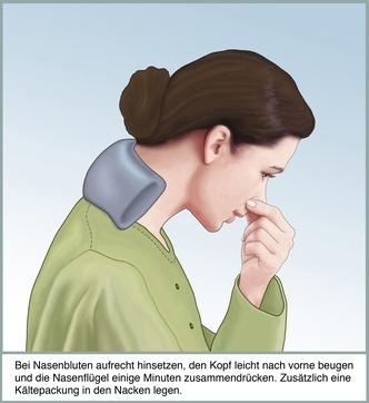 Nasenbluten - Epistaxis
