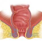 Трещина заднего прохода приводит к проблемам с кровоснабжением в области ануса