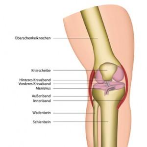 Изображение - Растяжение наружной боковой связки коленного сустава cp_baenderriss_42509010-300x300