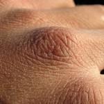 Trockene Haut - Xerosis cutis