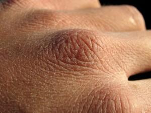 Cухость кожи – Xerosis Cutis