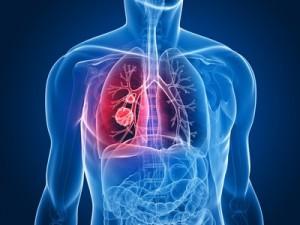 Strahlentherapie Berlin Lungentumor