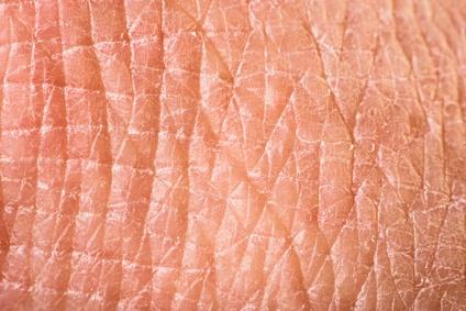 Diagnose von Hauttumoren und ihren Vorstufen durch den Hautarzt