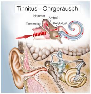 Ohrensausen, Tinnitus