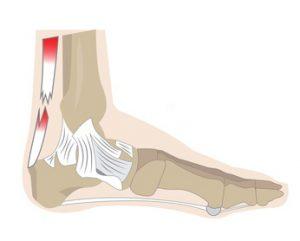 Beim Achillessehnenriss ist die Sehne in der Regel ganz durchtrenn