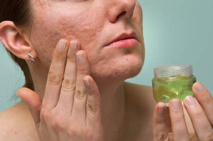 Der Dermatologe empfiehlt die Haut mit nicht komedogenen Gels und Cremes zu pflegen