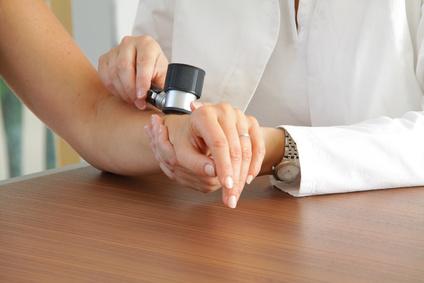 Der Dermatologe stellt aktinische Keratosen oft ab dem Alter von 50 Jahren fest