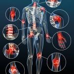 Arthrose ist die häufigste Gelenkerkrankung die von Orthopäden diagnostiziert wird