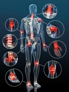 Артроз является самым распространённым заболеванием, диагностируемым ортопедами