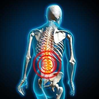 Ein Bandscheibenvorfall tritt häufig im unteren Bereich der Wirbelsäule auf