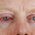 При конъюнктивите глаз воспаляется и краснеет