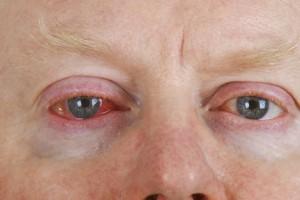 Bei Bindehautentzündung ist das Auge gerötet