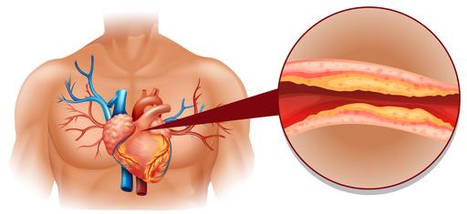 Ein erhöhter Blutfettwert führt zu Arterienverkalkung
