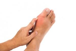 Подагра, как правило, по началу поражает большие пальцы ног и вызывает болезненные ощущени