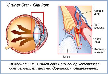 Ein Glaukom entsteht durch Verklebung und erhöhten Augeninnendruck