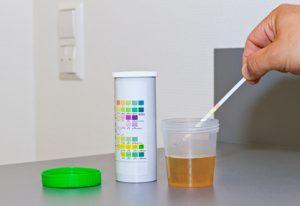Der Urologe führt unter anderem eine Urinuntersuchung durch