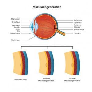 Возрастная макулярная дегенерация поражает центральную область глаза - макулу
