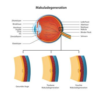 Die altersabhängige Makuladegeneration wirkt sich auf die Augenmitte, die Makula, aus
