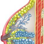 Bei der Mastitis hat sich die Brustdrüse entzündet