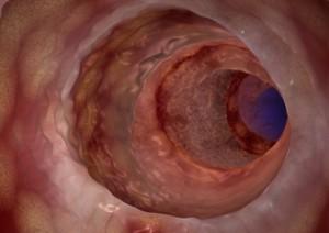 Auch die tieferen Schichten der Darmwand oder umliegendes Gewebe sind betroffen
