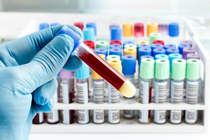 Der Endokrinologe führt Blutuntersuchungen durch