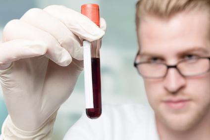 Der Urologe ordnet eine Blutuntersuchung an