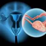 Eierstockkrebs, Ovarialkarzinom