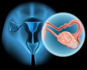 Eierstockkrebs ist die zweithäufigste Krebserkrankung der weiblichen Genitalorgane