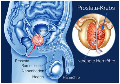 Die Prostata umschließt einen Teil der Harnröhre