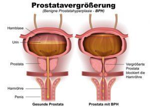 Die gutartige Geschwulst wird vom Urologen Prostatahyperplasie genannt