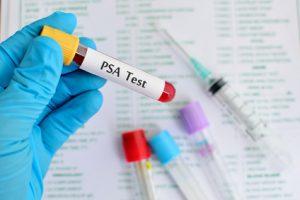 Der Urologe kann verschiedenste Untersuchungen, wie den PSA Test durchführen