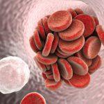 Ein Blutgerinnsel setzt sich an der Venenwand fest