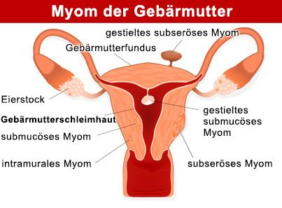 Das Uterusmyom entsteht im Muskelgewebe der Gebärmutter