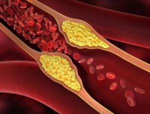 Eine Gefäßverengung kann Angina pectoris auslösen